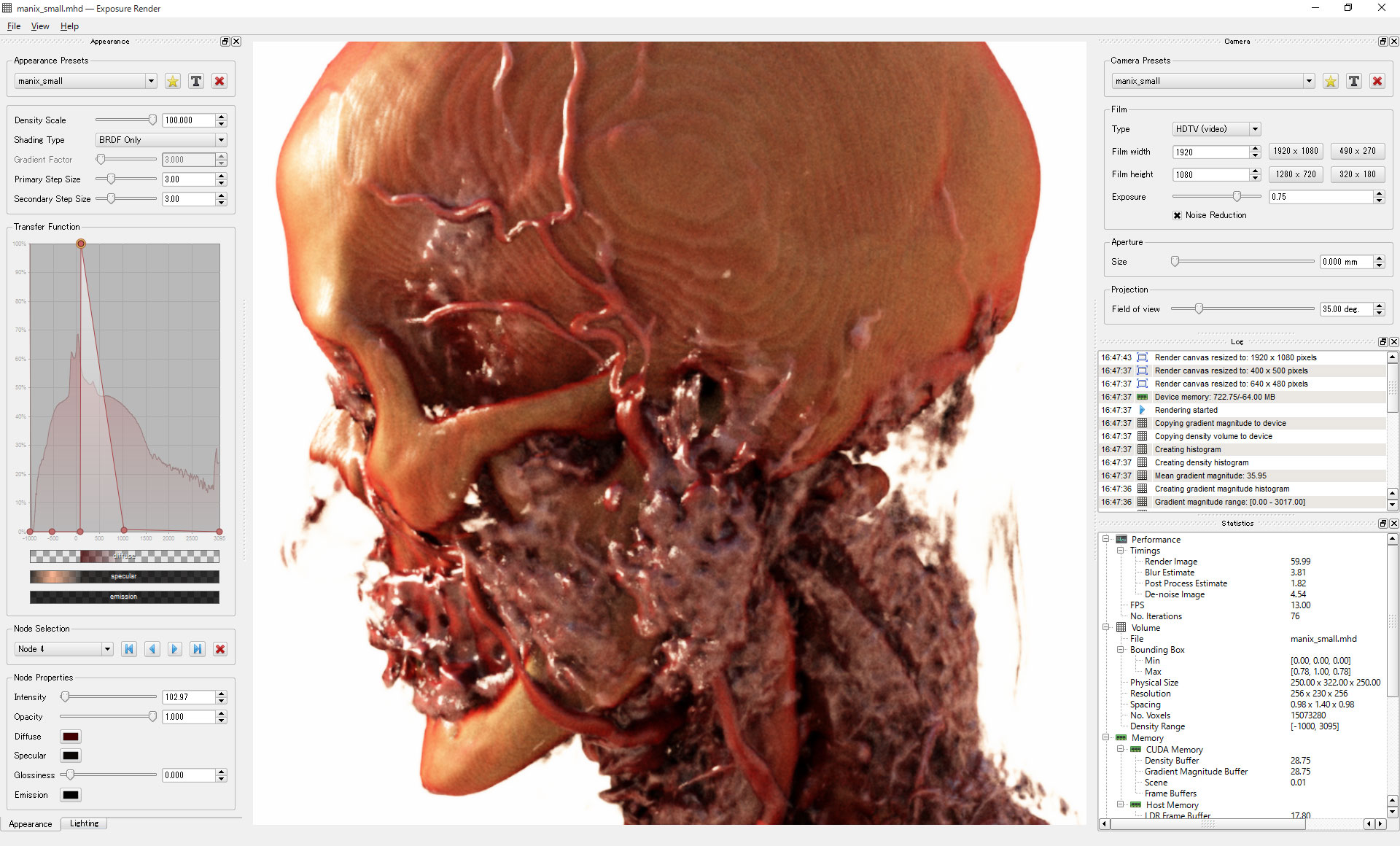 DICOM Render Exposure